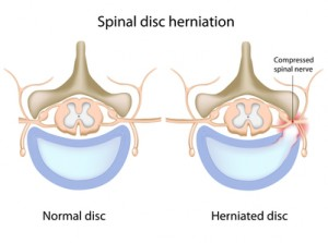 Spinal_Decompression